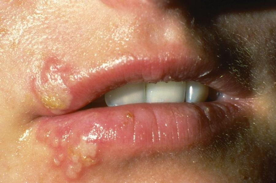 Как быстро вылечить малярию на губе за несколько минут thumbnail