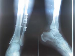 Существуют разные типы перелома малоберцовой кости