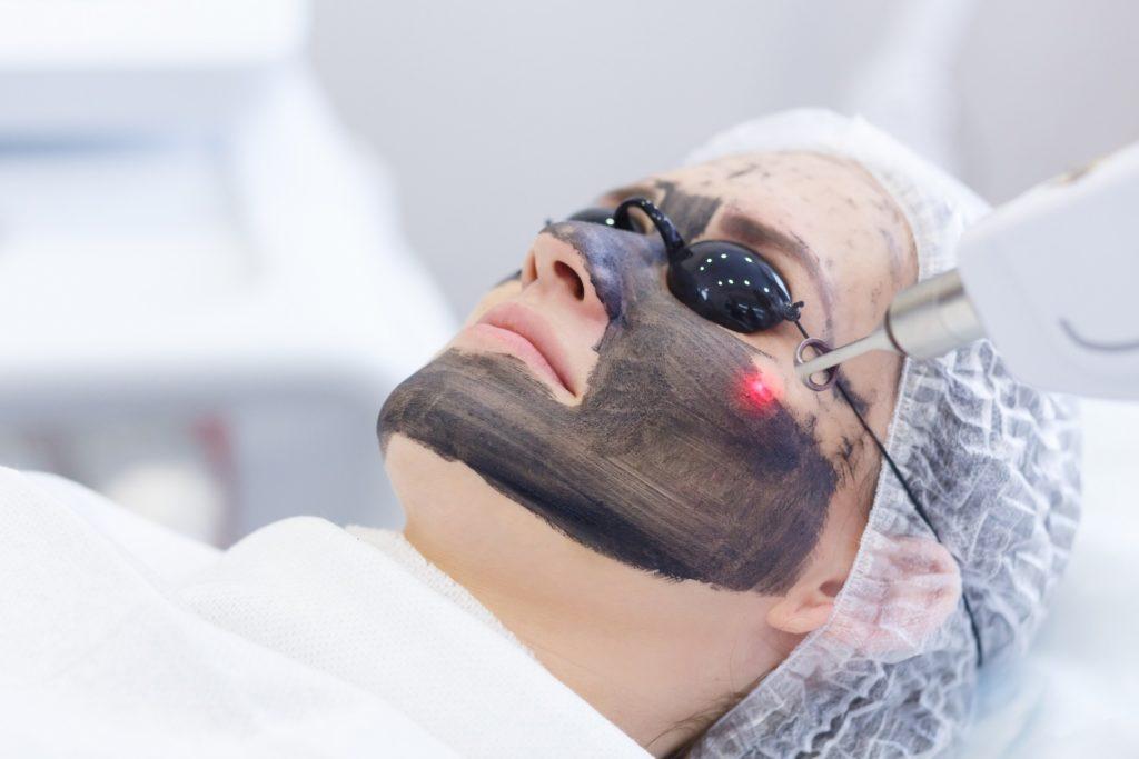 Кому и зачем нужна лазерная чистка лица