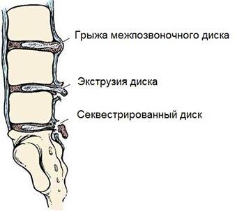 Отличия секвестрированной грыжи позвоночника от типичной