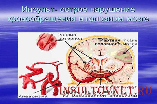 Нарушение кровообращения при инсульте