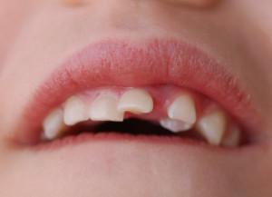 Вывих молочного зуба у ребенка