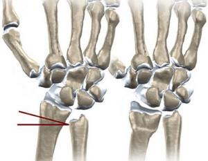 Короткая локтевая кость