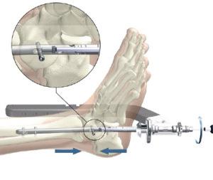 При тяжелых формах переломах, применяют компрессионно-дистракционный остеосинтез