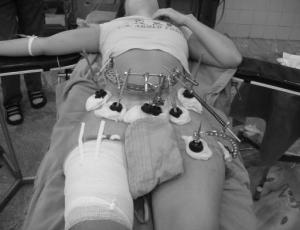 Фиксация отломков костей с помощью остеосинтеза