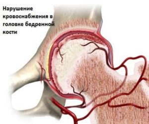 Нарушение кровочнабжения головки сустава