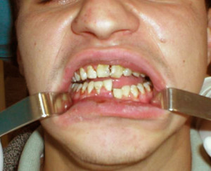 Частичное нарушение целостности кости челюсти