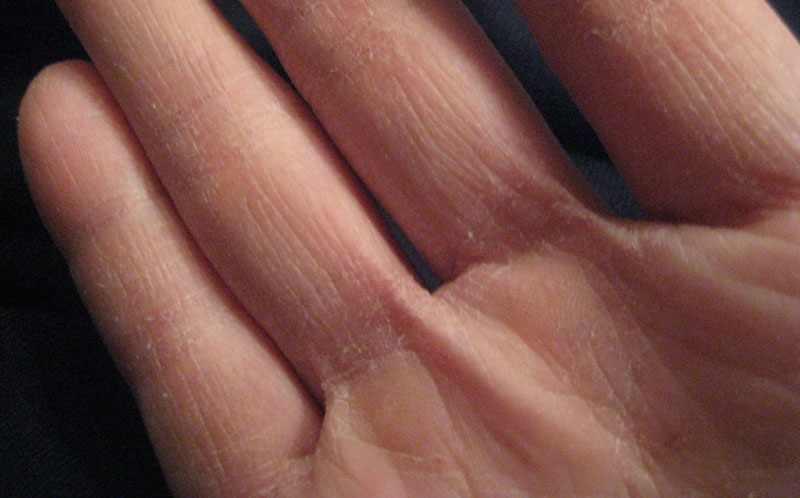 На фото авитаминоз на руках