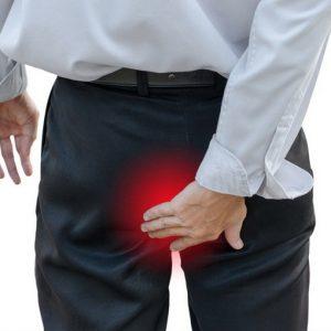 Причины и симптомы внутреннего геморроя у мужчин