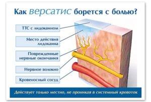 Особенности пластыря Версатис с лидокаином