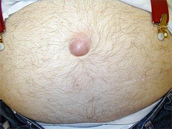 Лечение пупковых грыж у мужчин без последующих рецидивов