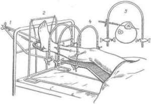 Скелетное вытяжение, как метод лечения травматических повреждений конечностей