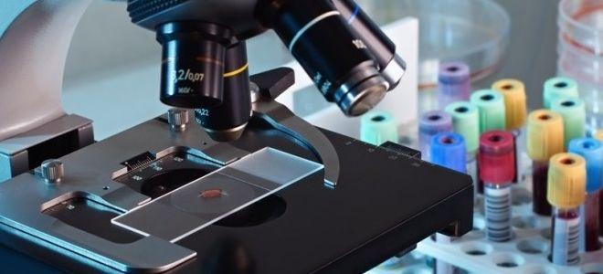 Анализ крови на определение глистов