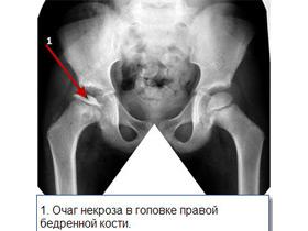 Лечение некроза тазобедренных суставов