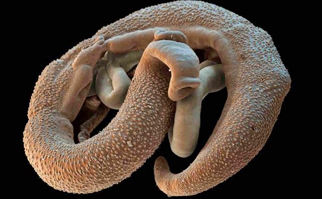 Шистосомы - опасный паразит для человека
