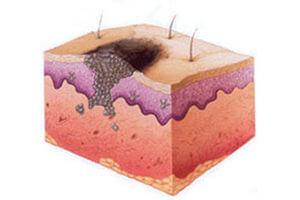 Причины развития рака кожи
