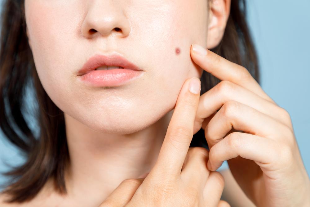 Бородавки на лице: от чего появляются и как избавиться от бородавок?
