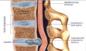 Почему происходит боль в спине и позвоночнике
