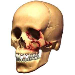 Переломов костей верхней челюсти