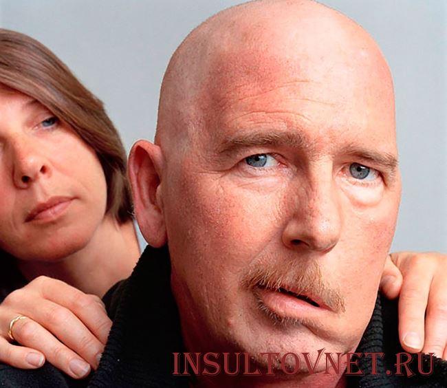 Последствия стволового инсульта