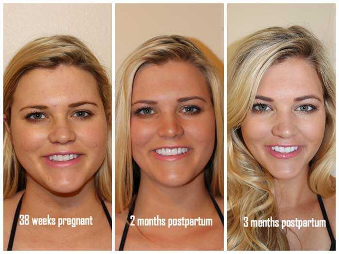 Сбросить вес на лице