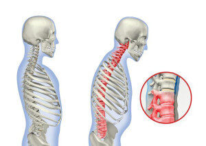 Симптомы остеохондроза грудного