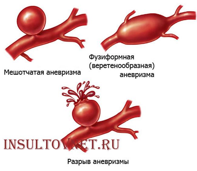 разрыв аневризма головного мозга