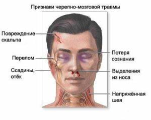Самые основные симптомы при переломе