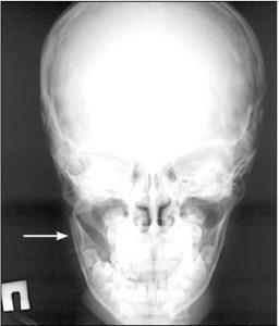 Рентгенограмма в сагиттальной проекции