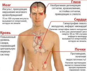 Чем опасна гипертония для человека