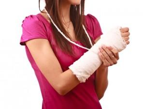 Перелом лучевой кости в девушки