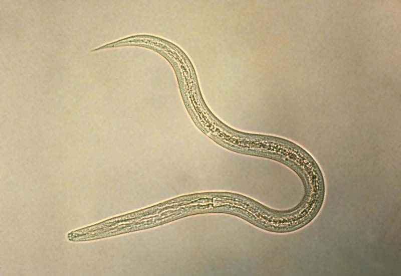 Черви нематоды у человека виды, особенности строения, симптомы