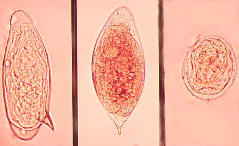шистосоматоза