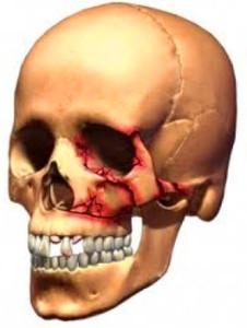 Смещения отломков лицевой кости