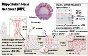 Симптомы папилломы человека