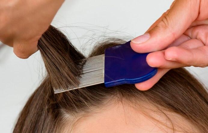 Как правильно вычесывать вши