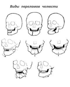 Возможные переломы нижней челюсти