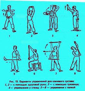 Упражнения после вывиха плечевого сустава