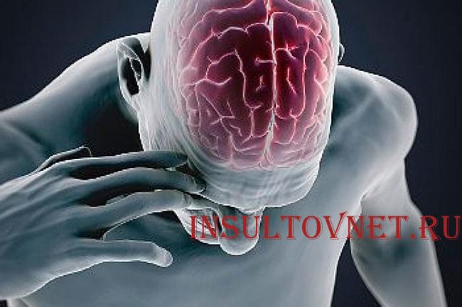 Последствия после инсульта