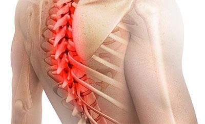 Как проявляется грыжа грудного отдела позвоночника и как её лечить
