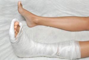 При переломе клиновидной кости стопы необходима иммобилизация на 1,5 месяца