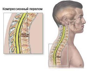 При компрессионном переломе, происходит сдавливание позвонков