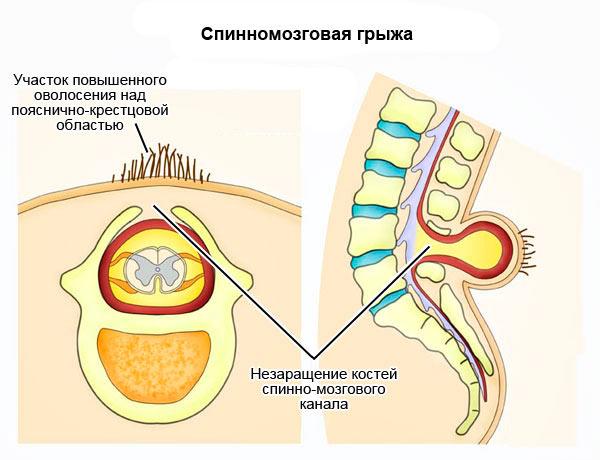 Эффективные методы диагностики и лечения спинномозговой грыжи