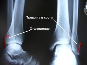 Трещина в кости лодыжки