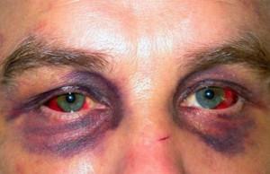 Кровоподтеки под глазами