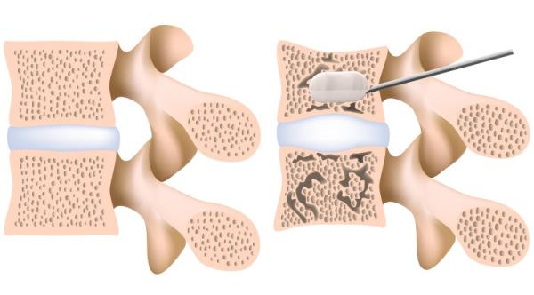 Кифопластика заключается в введении в травмированный позвонок специального цемента