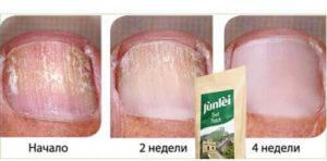 Эффект пластыря Junlei от грибка