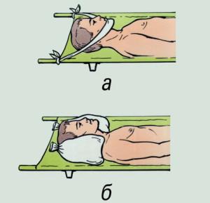 Иммобилизация при травме шеи