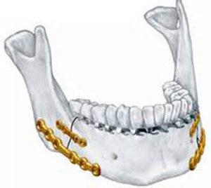 Остеосинтез костей челюсти