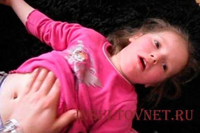 Роландическая эпилепсия у детей